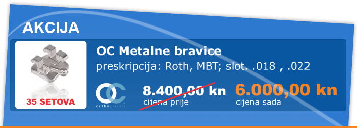 01-metalne-bravice.png